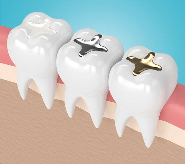 Long Grove Tooth Colored Fillings