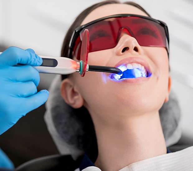 Long Grove Professional Teeth Whitening